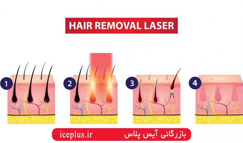 مراحل حذق موهای زائد با دستگاه لیزر